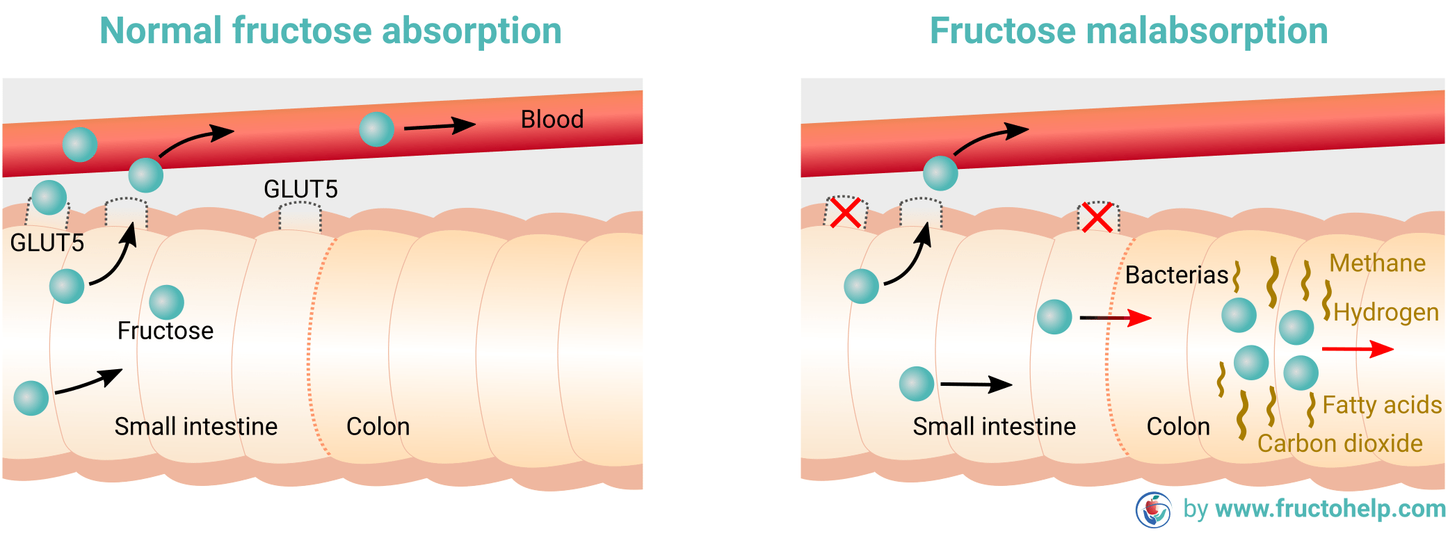 FructoHelp - Normal Fructose Absorption and Fructose Malabsorption (Dietary Fructose Intolerance) - www.fructohelp.com